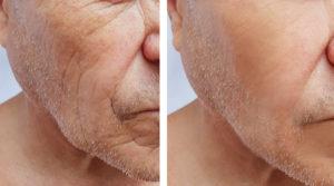 arrugas en hombre